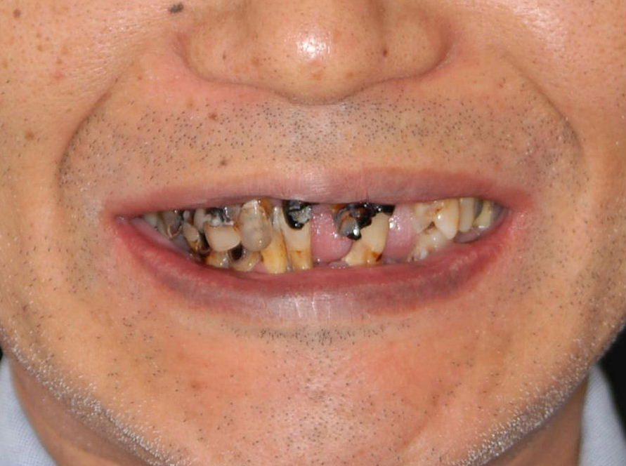 歯科嫌いで20年ぶりの治療 噛めなくて丸飲みを何とかしたい(40代 男性)