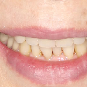 部分入れ歯の治療例