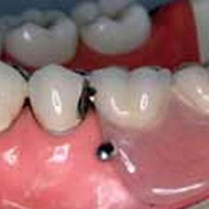 部分入れ歯の種類