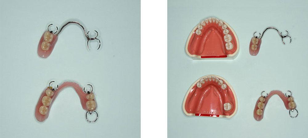 大きな義歯