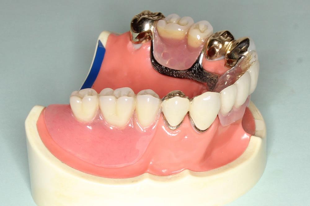 コーヌス入れ歯