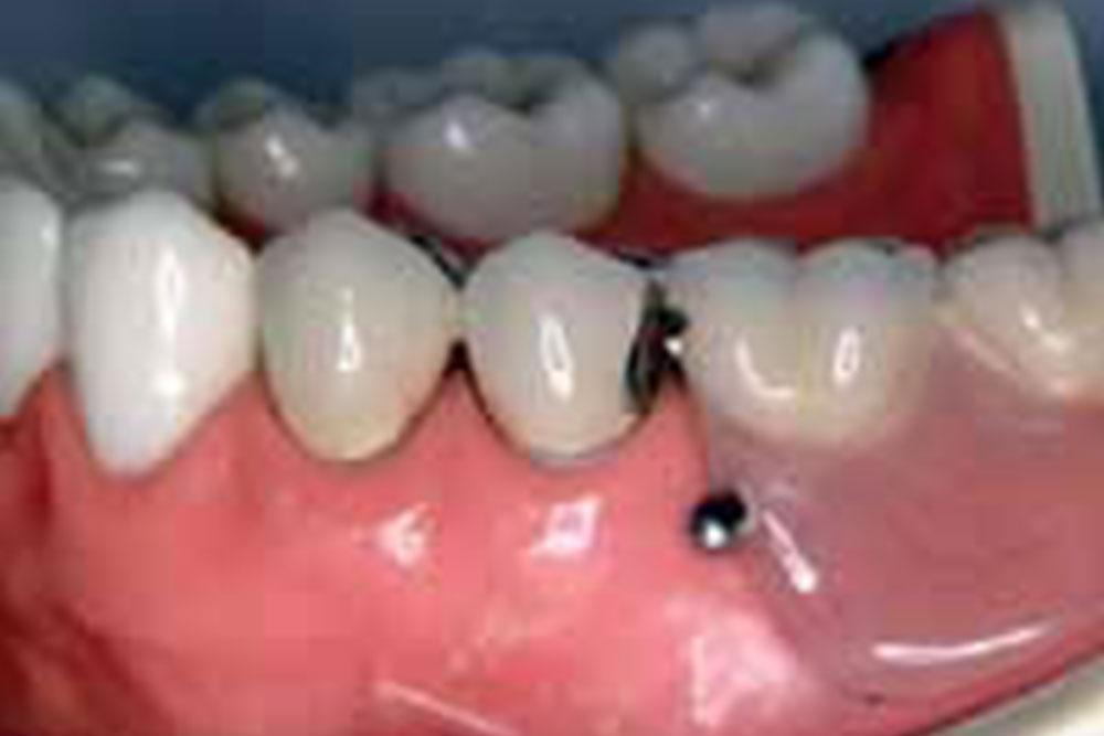 精密アタッチメント義歯