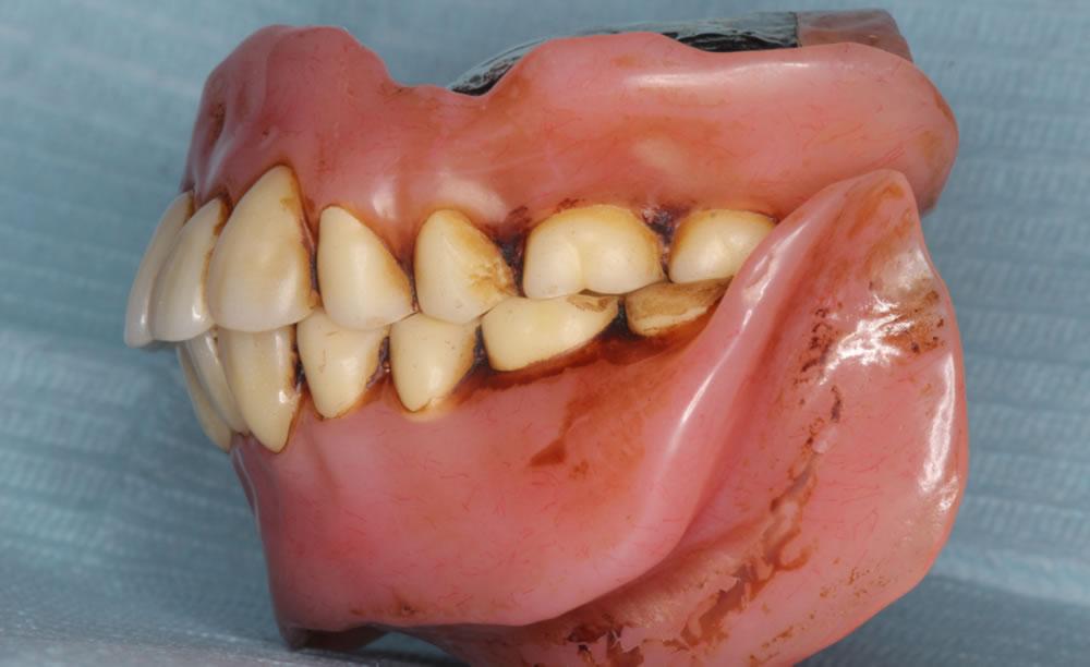 義歯洗浄前