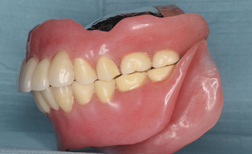 義歯洗浄後