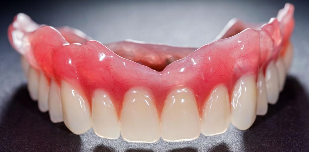 入れ歯治療を選択