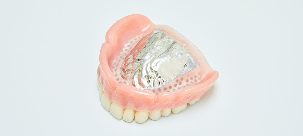 精密金属義歯治療