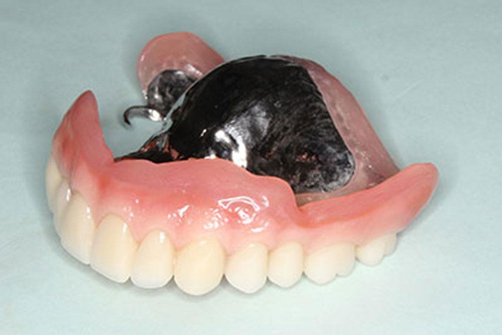 ブリッジ義歯の治療費