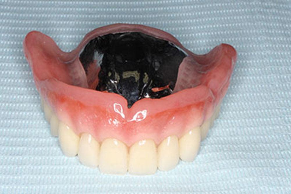義歯の治療費