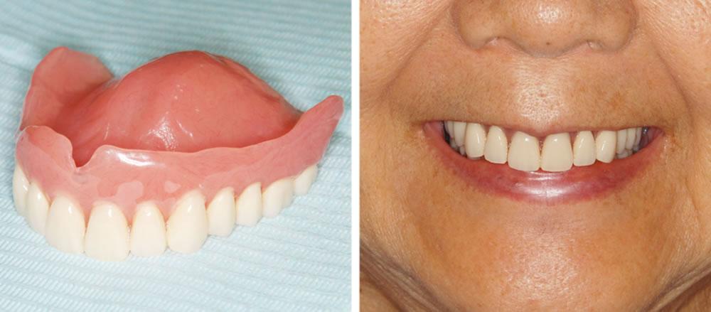 即日回復義歯