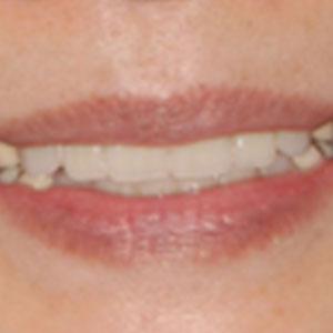 総入れ歯の治療例