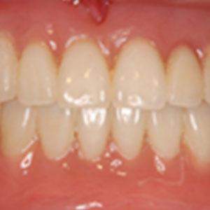 総入れ歯を詳しく知る